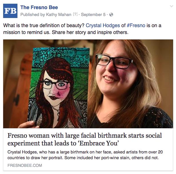 Fresno birthmark beauty